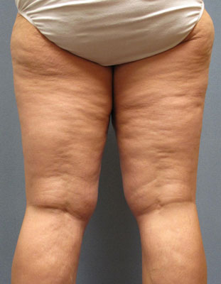 what-is-cellulite-01